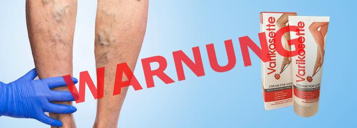 ACHTUNG! Varikosette, Expertenmeinung aufgedeckt → BETRUG?