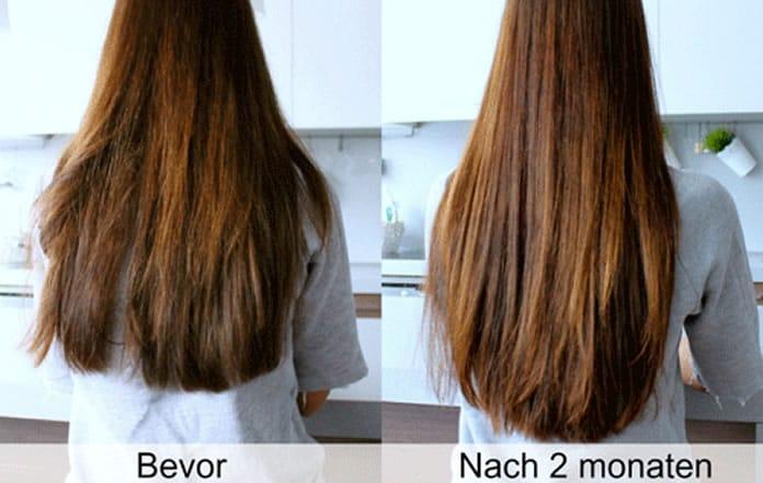 Achtung Hair Jazz Diese Nebenwirkungen Können